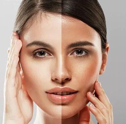روشن-کردن-پوست-چگونه