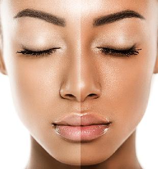 مواد-روشن-کننده-و-سفید-کننده-پوست-صورت