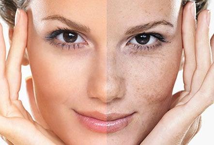 علت تشکیل لک های پوستی و درمان و علل و عوامل لک صورت
