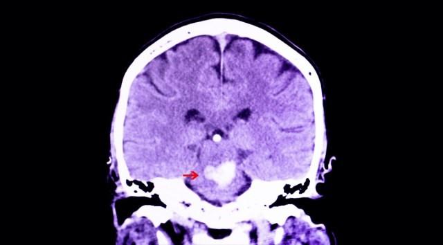 مصرف بیش از حد مولتی ویتامین ها و مکمل ها به صورت روزانه ، سکته مغزی