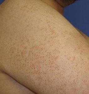 بیماری پوست مرغی ، درمان با رتینول