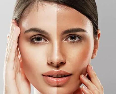 """چگونه پوستی روشن داشته باشیم ؟ """"روشن کردن پوست"""" ، روشن شدن پوست"""